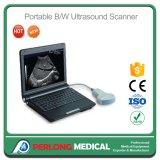 Macchina portatile dello scanner di ultrasuono di Digitahi del computer portatile delle attrezzature mediche in pieno