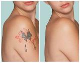 machine à commutation de Q de laser de déplacement de tatouage de peau de l'énergie 10-2000mj