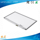 "Edp 30pin 15.6 "" 1920*1080 휴대용 퍼스널 컴퓨터 LCD 위원회 IPS LED 스크린 B156han01.1"