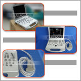 Bewegliche Digital Ultrasound Machine mit 3D Color Doppler