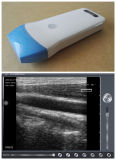 Punta de prueba linear del pequeño ultrasonido sin hilos Pocket Handheld para la pediatría