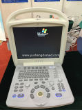 Scanner portatif d'échographie-Doppler de couleur du système de diagnostic de FDA 4D