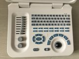 Het hete Laptop van de Apparatuur van het Ziekenhuis van de Verkoop Digitale Systeem Ysd4000c van de Ultrasone klank