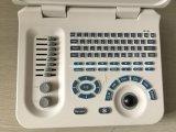 Sistema de Ultrasonido Portátil Digital Equipment hospital hotsale