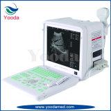 Colorear el tipo máquina médica de la carretilla de Doppler del ultrasonido del hospital