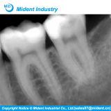 Sensore dentale del raggio di X del tridente Ds530 di Digitahi