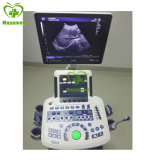 My-A031A Factory Price 4D Digital Color Doppler Sonar Ultrasound System