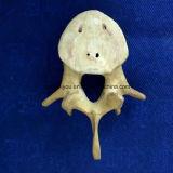 Osso ortopédico material da prática e da demonstração da cirurgia do plutônio (vértebra simulada)
