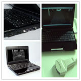 Laptop-Ultraschall