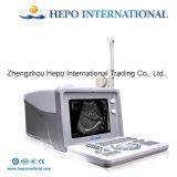 Ultra-som portátil cheio diagnóstico ultra-sônico popular de China Digital