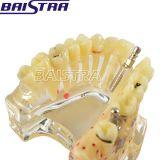 أسنانيّة إمداد تموين نسيج مزدرع شفّافة سنّ طبيّة أسنانيّة [زر-2007] نموذجيّة