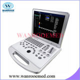 Colore medico ultrasonico Doppler del dispositivo diagnostico Us370