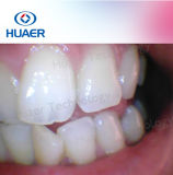 appareil-photo dentaire d'hygiène buccale de la fonction USB du Zoom-in 1.3mega