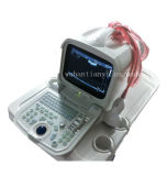 3D Portable Ultrasound Scanner