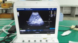 Ce 4D Color Doppler Laptop Handheld Scanner de diagnóstico por ultra-som