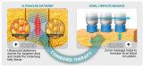 El CE al por mayor aprobó Bifrequency enfocado - cavitación que adelgazaba la máquina (la dimensión de una variable de Vaca)