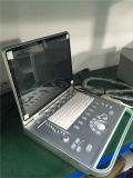 PC gründete Scanner-Ultraschall des Laptop-B