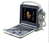 L'ultrason d'hôpital de scanner d'échographie-Doppler de couleur portatif le meilleur marché