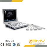 Bcu-10超音波診断イメージ投射システム