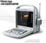 2D cor portátil clínica barata Doppler do ultra-som de 3D 4D para Ob Gyn Fetals cardíaco