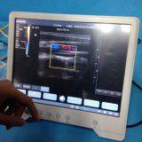 携帯用カラードップラー超音波のスキャンナーMslcu25A