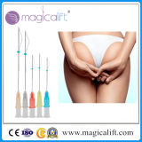 Hot Sale Face Lifting 3D Pdo Thread Lift