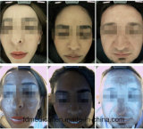 Hot Selling 3D Skin Scanner Machine / Magic Mirror Skin Analyzer