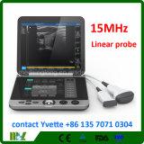 ¡Mslpu44 2017 nuevo! ¡! Ultrasonido médico portable con la punta de prueba linear 15MHz para el hospital