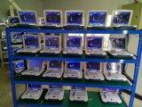 Machine d'échographie 2D populaire à vendre Échographie