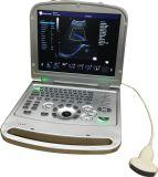 15 LEIDENE van de duim Laptop van Minitor de Echografie van Doppler van de Stroom van de Kleur ew-C15 met Convexe Sonde voor Buik Kenmerkend