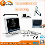 """Des 2D 3D Ob/Gyn Laptop-Ultraschall-Maschine des Großhandelspreis-Screen-15 """"/Herzmodus-Diagnoseultraschall-Preis des portable-B"""