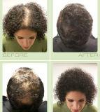 Обработка потери волос Toppik и чернота волокон 55g здания волос (1.94OZ)
