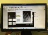 Ja zahnmedizinischer Röntgenstrahl-intra-oraler Sensor Biotech-Digital von Korea