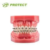 Bas individu dentaire de couple ligaturant les parenthèses orthodontiques