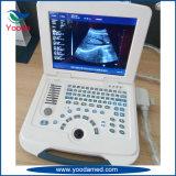 Tipo color Doppler de la carretilla de la máquina del ultrasonido del equipamiento médico