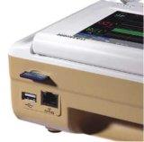 5.7 인치 태아 모니터 임산부 모니터 태아 도풀러 초음파 큰 스크린 (SC-STAR5000E)