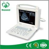 My-A005 Digital beweglicher Ultraschall-Scanner