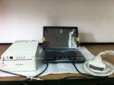 Niedrige Kosten-beweglicher Laptop-Ultraschall-Scanner