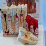 Modello anatomico dei denti patologici di cura dentale