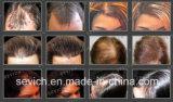 Cabelo imediato natural provisório da queratina da biologia do produto do cuidado de cabelo 15g que denomina fibras para o engrossamento do cabelo do tratamento da perda de cabelo