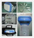 Nuevo explorador del ultrasonido de la visualización del LCD del Portable (AJ-6100B LCD)
