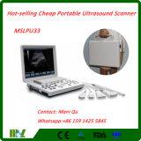 最も経済的で熱い販売の携帯用超音波のスキャンナーか超音波機械(MSLPU33)