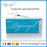 ナトリウムのHyaluronateの酸の皮膚注入口の注入深い2.0ml