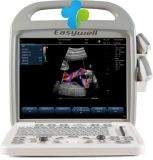 Bewegliches Color Doppler Ultrasound Ew-C10 mit Convex Probe C3r60 und Transport-Vaginal C6r10 für Human Use