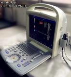 Ultrasonido portable de Doppler del color del bajo costo 3D 4D para cardiaco vascular abdominal
