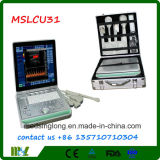 Alto ultrasonido rentable de Doppler del color (MSLCU31)