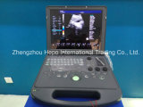 De hete Ultrasone klank van Doppler van de Kleur van de Verkoop Draagbare 3D voor de Diagnose van het Ziekenhuis