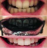 Mejores dientes sabor menta fresca Blanqueamiento de Dientes de carbón activado en polvo Polvos Blanqueamiento