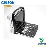 Цена Chison Eco3 ультразвука медицинского портативная пишущая машинка 2D B/W стационара