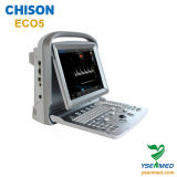 Ultra-som Chison Eco5 de Doppler da cor do Portable médico do hospital 2D